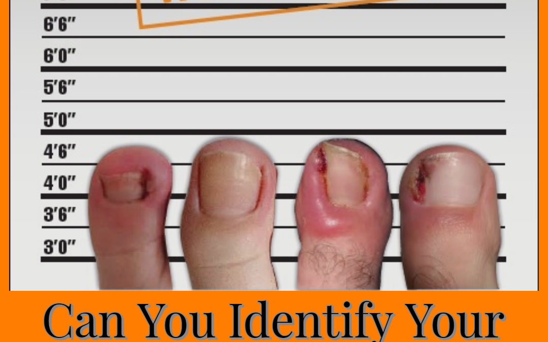 Can you identify your ingrown toenail culprit?