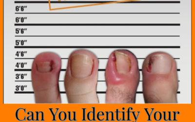 Can you identify your ingrown toenail culprit?
