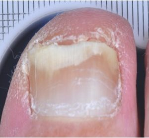 After 3 months Treatment Nail Fungus Toe 3