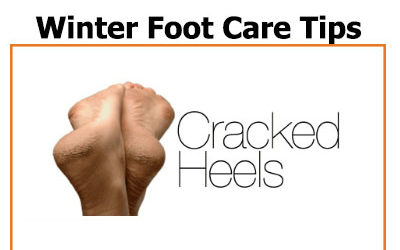 Feb 2020 Newsletter – Winter Foot Care: Tips for Cracked Heels and more